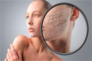 celulitis-facial